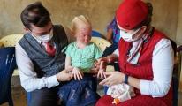 THY albino hastası çocukların yaralarına merhem oldu video